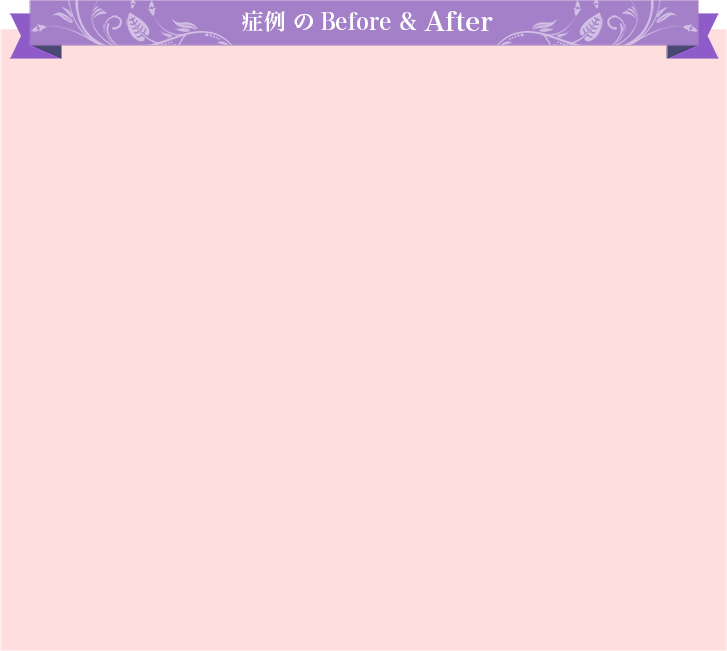 症例 のBefore & After